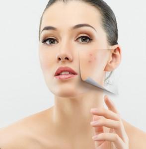 Hautprobleme ©Konstantin Yuganov - Fotolia.com
