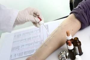 Ärztlicher Allergietest